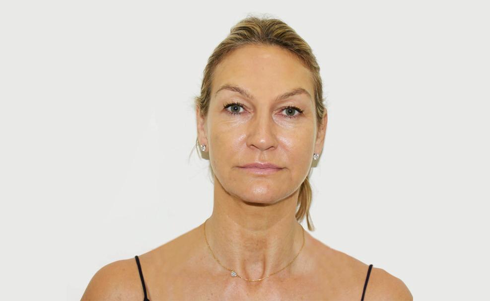 Rejuvenare faciala